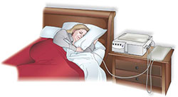 illustration of woman sleeping, connected to a home peritoneal dialysis machine